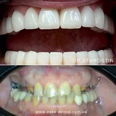 Зубы до и после