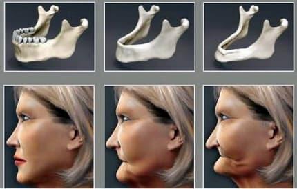 Dental implant Straumann