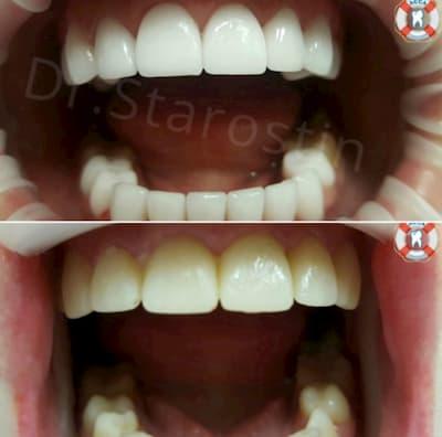 Установка 10 керамических виниров на верхней челюсти и 9 на нижней