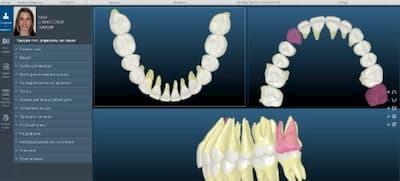 цифровая ортодонтия в стоматологии