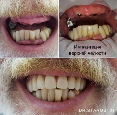 Отсутствие зубов на верхней челюсти