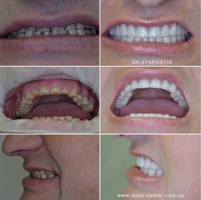 Патологическая стираемость всей группы зубов