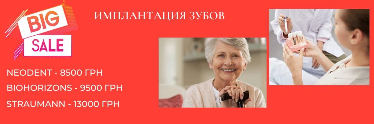 Имплантация зуба в Киеве