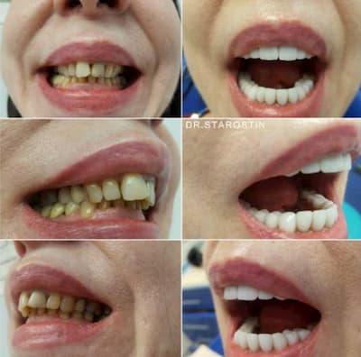 Керамических реставрация на всю группу зубов