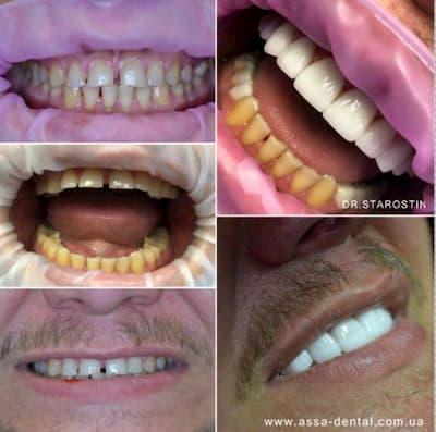 наличие щели между зубов