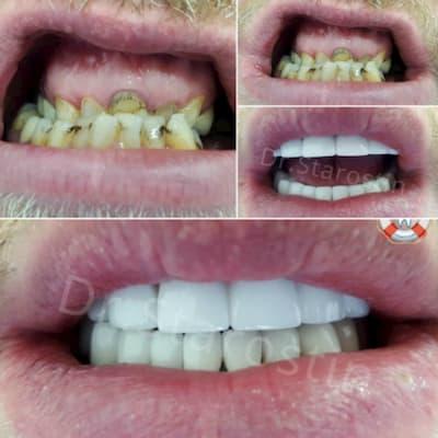 Тотальная реконструкция зубного ряда