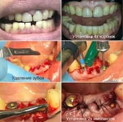 Наличие грануляций. Удаление зубов и одномоментная имплантация