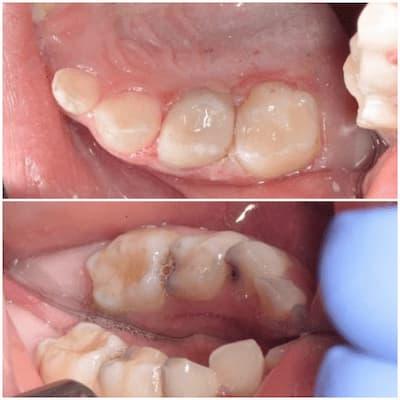 Инвазивная герметизация фиссур в стоматологии
