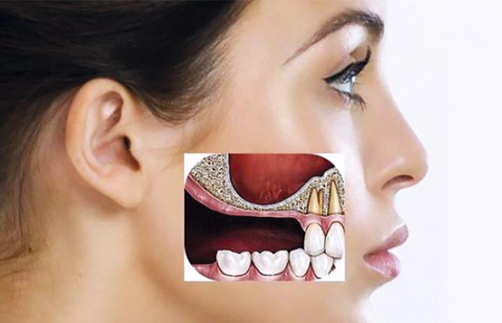 Sinus lift and implantation