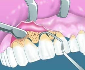 Лечение пародонта в стоматологии АССА