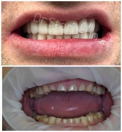 Керамические виниры восстановление улыбки