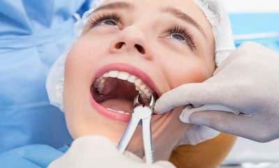 Каким инструментом удалять зуб