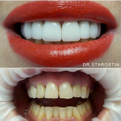 .Реконструкция улыбки с помощью керамических виниров