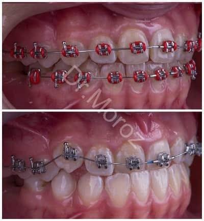 Брекет-системы на зубы