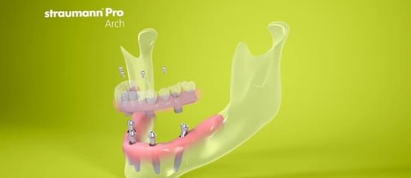 Имплантация зубов системой Штрауман