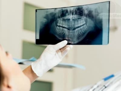 Ортопантомограмма в клинике асса