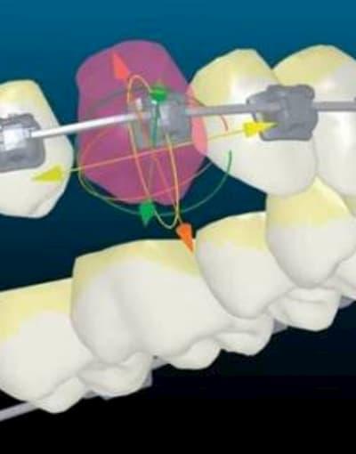 Цифровая ортодонтия в стоматологии асса