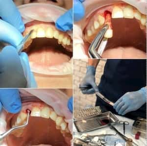 Удаление переднего зуба