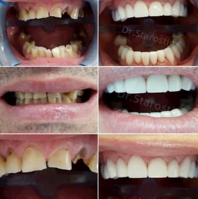 Терапевтическая подготовка зубов