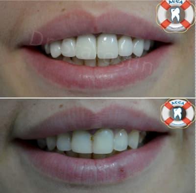 на передних зубах установлены керамические коронки e.max