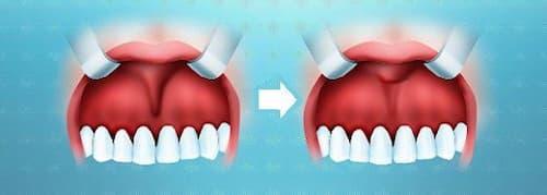Фото до и после пластики уздечки губы