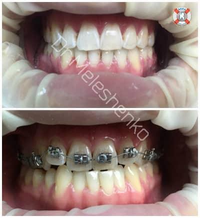 Исправление кривизны зубов