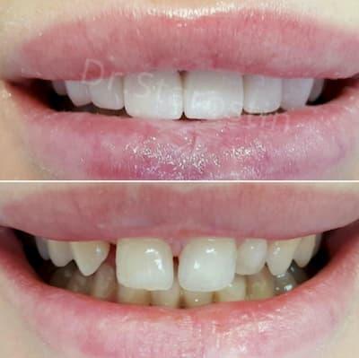 врожденная адентия, отсутствие 1 зуба и наличие 1 молочного зуба