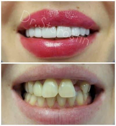 Изменение улыбки