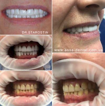 Зубы до и после виниры на зубы