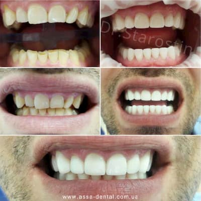 Поднятие прикуса на 5 мм, восстановление всех групп зубов