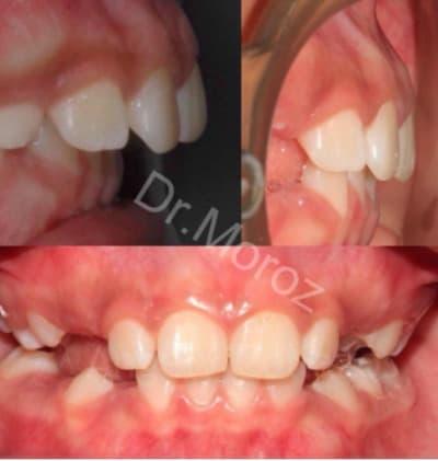 Съемная ортодонтическая пластинка