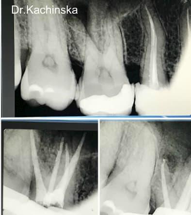 Лечение каналов в стоматологии Асса