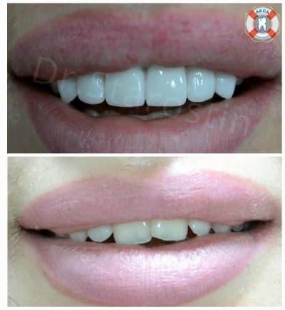 Керамические виниры стоматология АССА