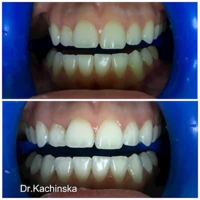 Стоматология асса лечение зубов