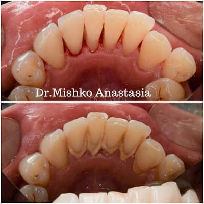 До и после чистки зубов центре асса