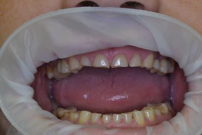 Истираемость зубов