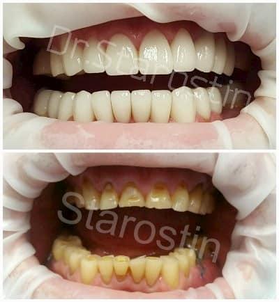 Стираемость зубов и исправление