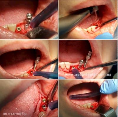 расщепление альвеолярного гребня на нижней челюсти