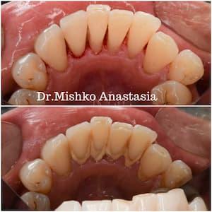 Professional dental hygiene