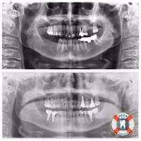 Dental panorama picture