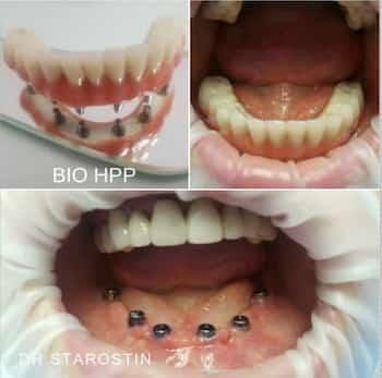 Полное отсутствие зубов на нижней челюсти