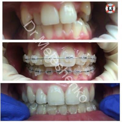 Orthodontic in assa dental clinic