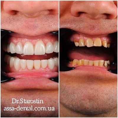 Подбор цвета и формы зубов
