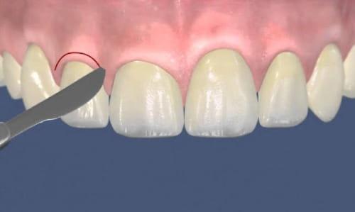Пластика десны стоматология асса