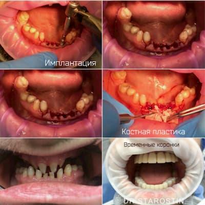 Аномалия развития зубочелюстной системы