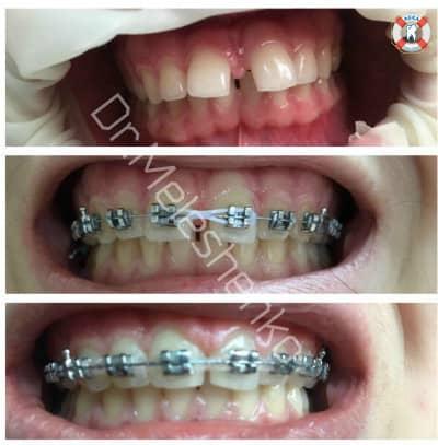 Брекет-система на одну челюсть