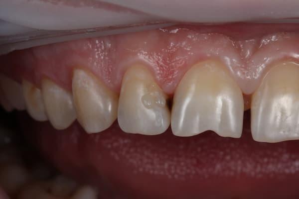 Восстановление зубов после лечения