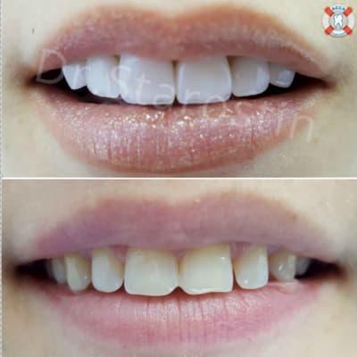 вид передних зубов и щели между зубами