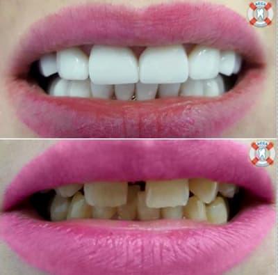 Реконструкция улыбки керамическими винирами
