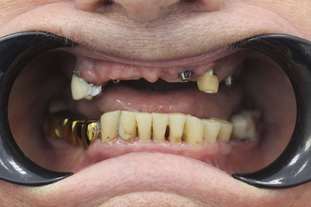 Адентия челюсти